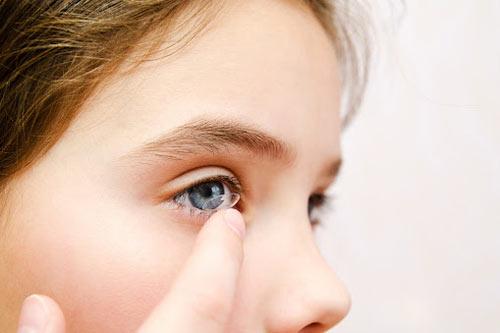 treatment options for myopia include specialty myopia control soft contact lenses